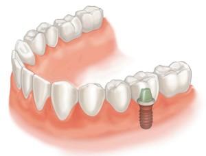 Implantologie Zaandam