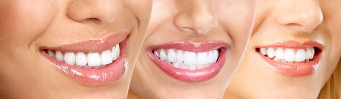 cosmetische tandheelkunde esthetisch tandheelkunde